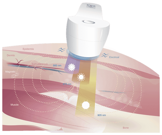 MR4 Laser Technology
